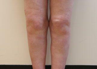 Lower limb lipoedema liposuction before