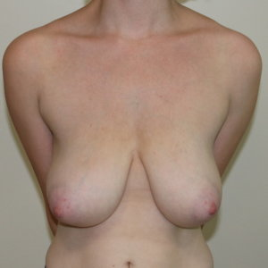 Mastopexy before surgery AP view