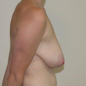 Mastopexy before surgery