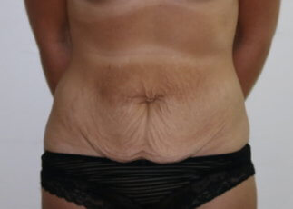 Tummy tuck before AP view at The Karri Clinic