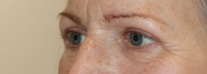 Upper blepharoplasty eyelid lift after surgery