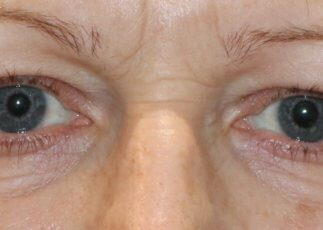 Upper blepharoplasty eyelid lift before surgery