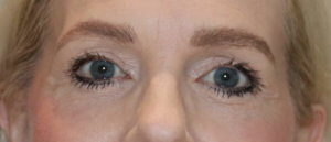 Direct brow lift and upper blepharoplasty (eyelid lift)