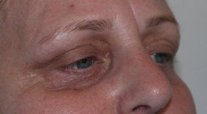 Lower eyelid 25% TCA peel before
