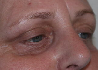Lower eyelid 25% TCA peel before