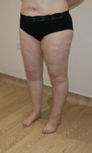 Lower limb lipoedema Type IV Stage II after surgery