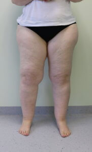 Lower limb lipoedema Type IV Stage II before surgery