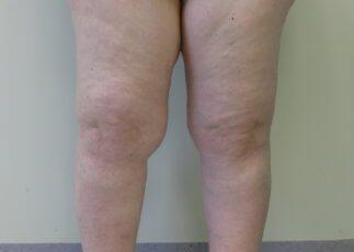 Lower limb lipoedema Type IV Stage II before surgery