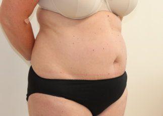 Brazilian tummy tuck (abdominoplasty) before surgery