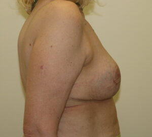 Breast reduction afer