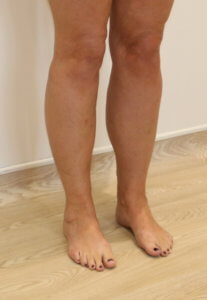 Cankle liposuction after