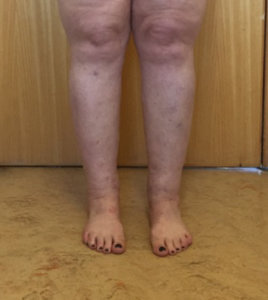 Cankles liposuction appearance after surgery