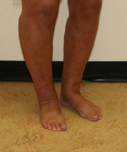 Ankle (Cankle) contouring surgery appearance after surgery