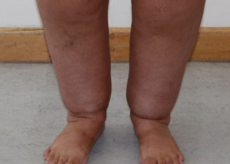 Ankle (Cankle) contouring surgery appearance before surgery