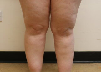 Lower limb lipoedema before liposuction
