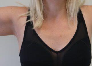 Upper limb lipoedema before liposuction