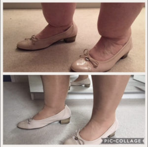 Cankles before and after surgery
