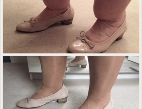 Ankle (Cankle) Contouring