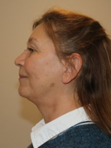 Facelift necklift after surgery left lateral