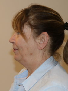 Facelift necklift before surgery left lateral