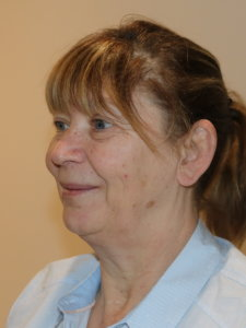 Facelift necklift before surgery left oblique