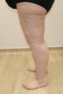 Lower limb lipoedema liposuction after surgery
