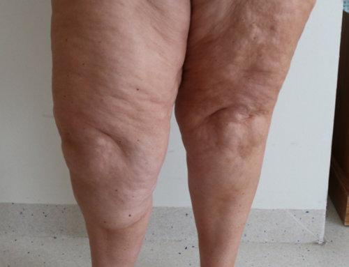 Lower Limb Lipoedema Liposuction