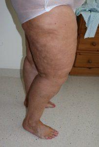 Lower limb lipoedema liposuction before surgery