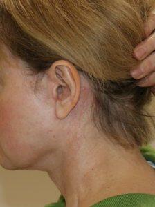 Neck lift pre-auricular scar