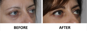 Transconjunctival lower blepharoplasty and TCA peel right oblique view