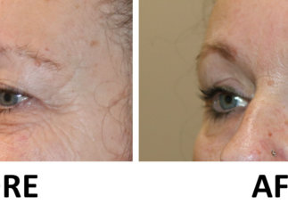 Upper eyelid lift and TCA chemical peel