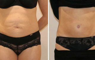 Tummy-tuck-daycase_The-Karri-Clinic