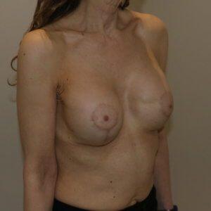 Breast capsular contracture Grade III surgery