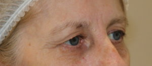 Direct brow lift and upper eyelid lift (blepharoplasty)
