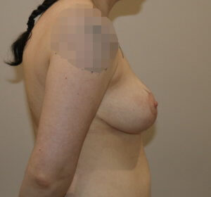 Mastopexy after surgery