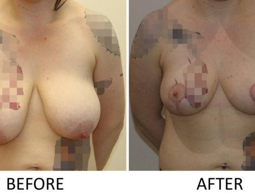 Breast Lift Mastopexy