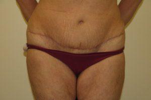 Mummy makeover, Brazilian tummy tuck scar