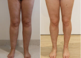 Lower limb lipoedema liposuction