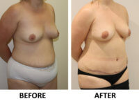 Mummy makeover, breast fat grafting, mastopexy, Brazilian tummy tuck