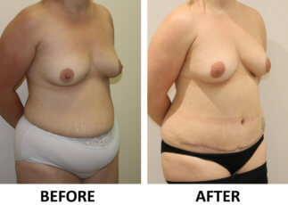 Mummy makeover, breast fat grafting, mastopexy, Brazilian tummy tuck