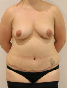 Mummy makeover, breast fat grafting, mastopexy, Brazilian tummy tuck after surgery AP view view