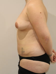 Mummy makeover, breast fat grafting, mastopexy, Brazilian tummy tuck after surgery left lateral view