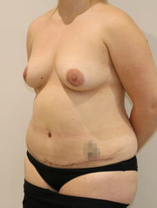 Mummy makeover, breast fat grafting, mastopexy, Brazilian tummy tuck after surgery left oblique view
