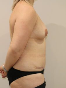 Mummy makeover, breast fat grafting, mastopexy, Brazilian tummy tuck after surgery right lateral view