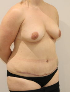 Mummy makeover, breast fat grafting, mastopexy, Brazilian tummy tuck after surgery right oblique view
