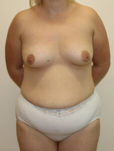 Mummy makeover, breast fat grafting, mastopexy, Brazilian tummy tuck before surgery AP view