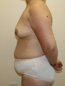 Mummy makeover, breast fat grafting, mastopexy, Brazilian tummy tuck before surgery left lateral view