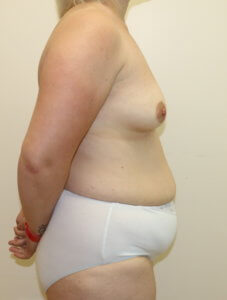 Mummy makeover, breast fat grafting, mastopexy, Brazilian tummy tuck before surgery right lateral view