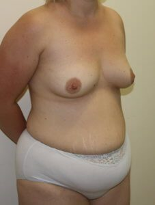Mummy makeover, breast fat grafting, mastopexy, Brazilian tummy tuck before surgery right oblique view