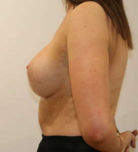 Breast enlargement after surgery left lateral view